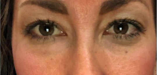 Lower Transcon.Blepharoplasty After