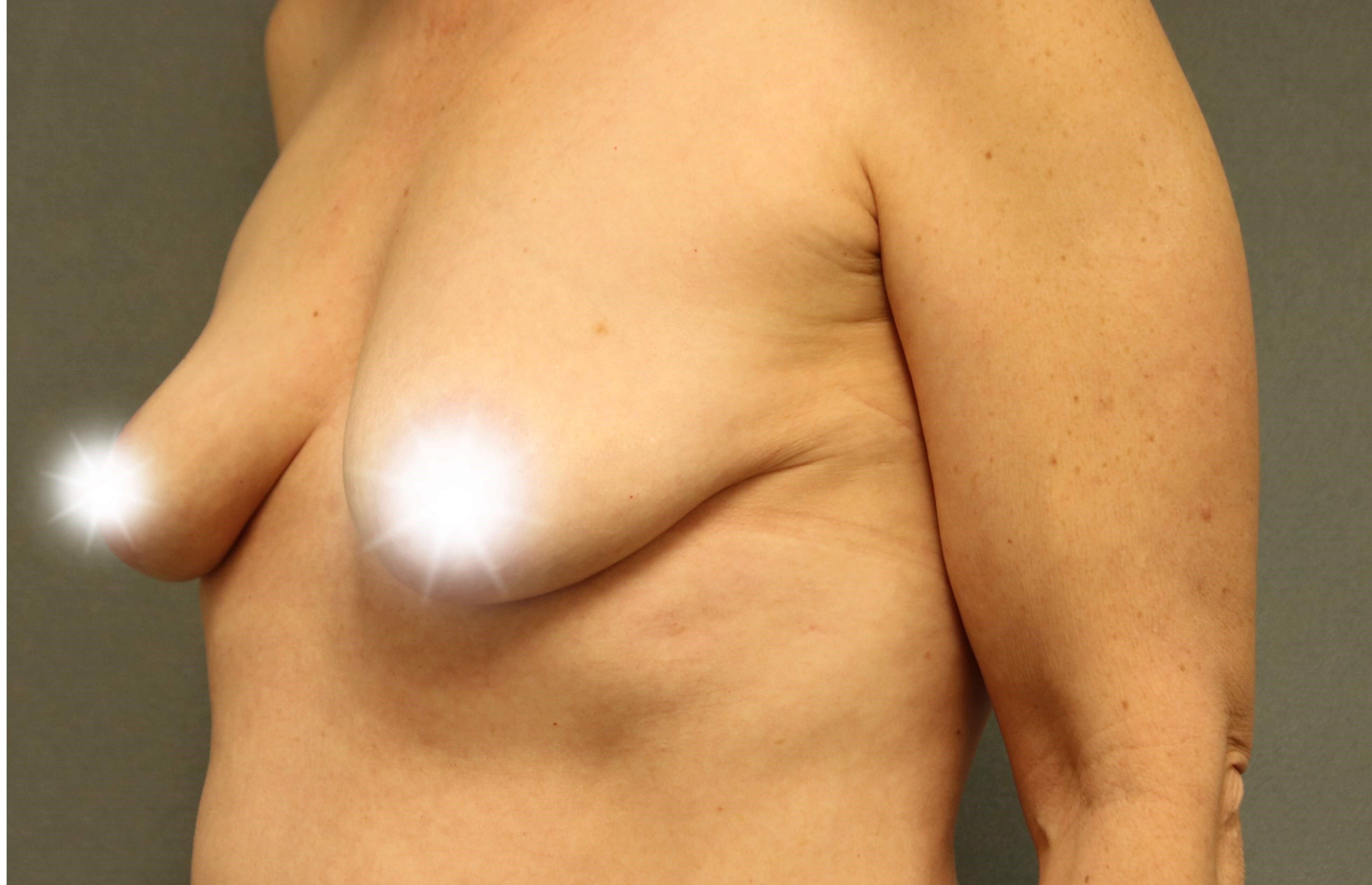 Side Breast Augmentation Before