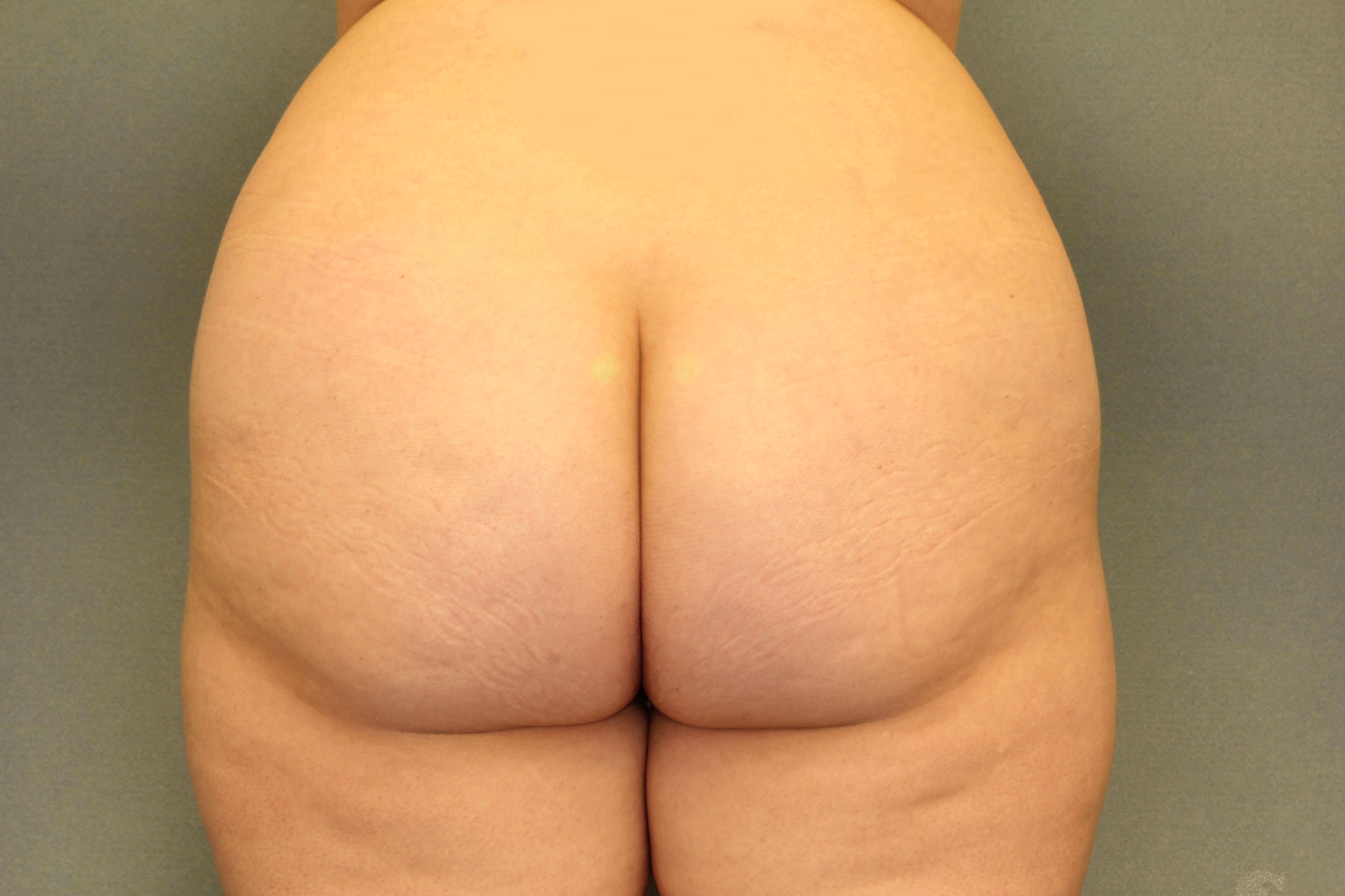 Fat transfer to Buttock Before