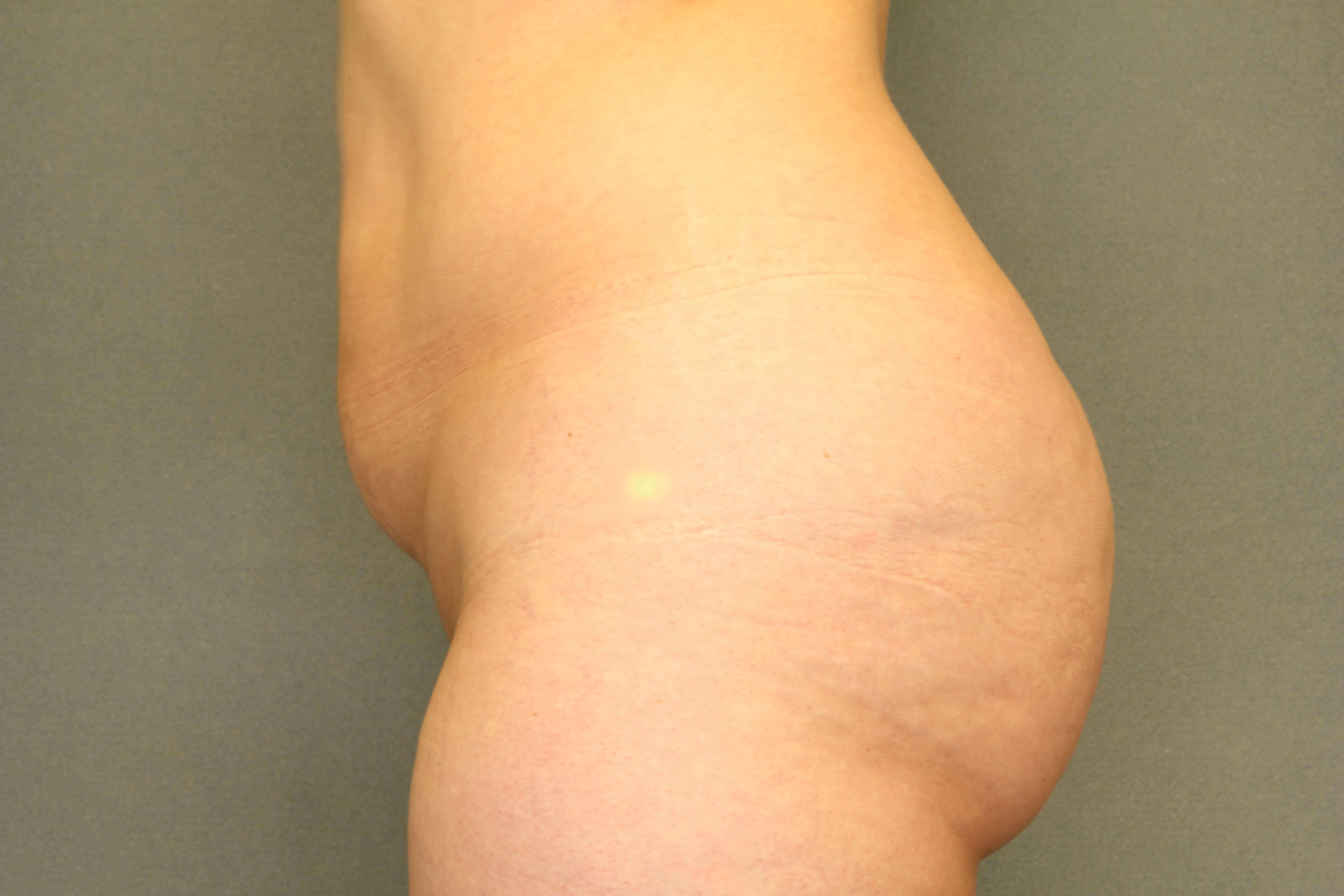 Side Fat transfer to Buttock Before