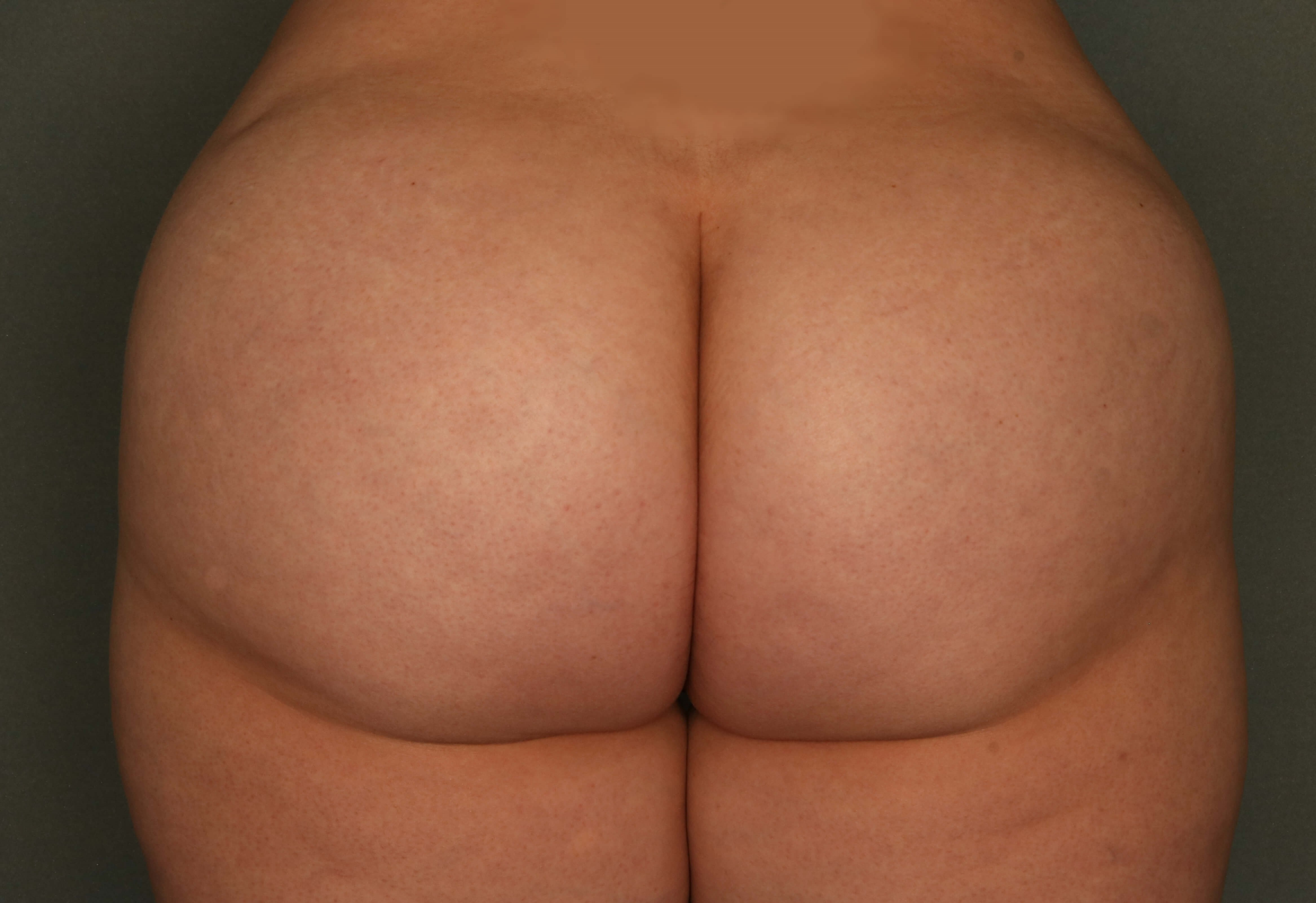 Fat transfer to Buttock After