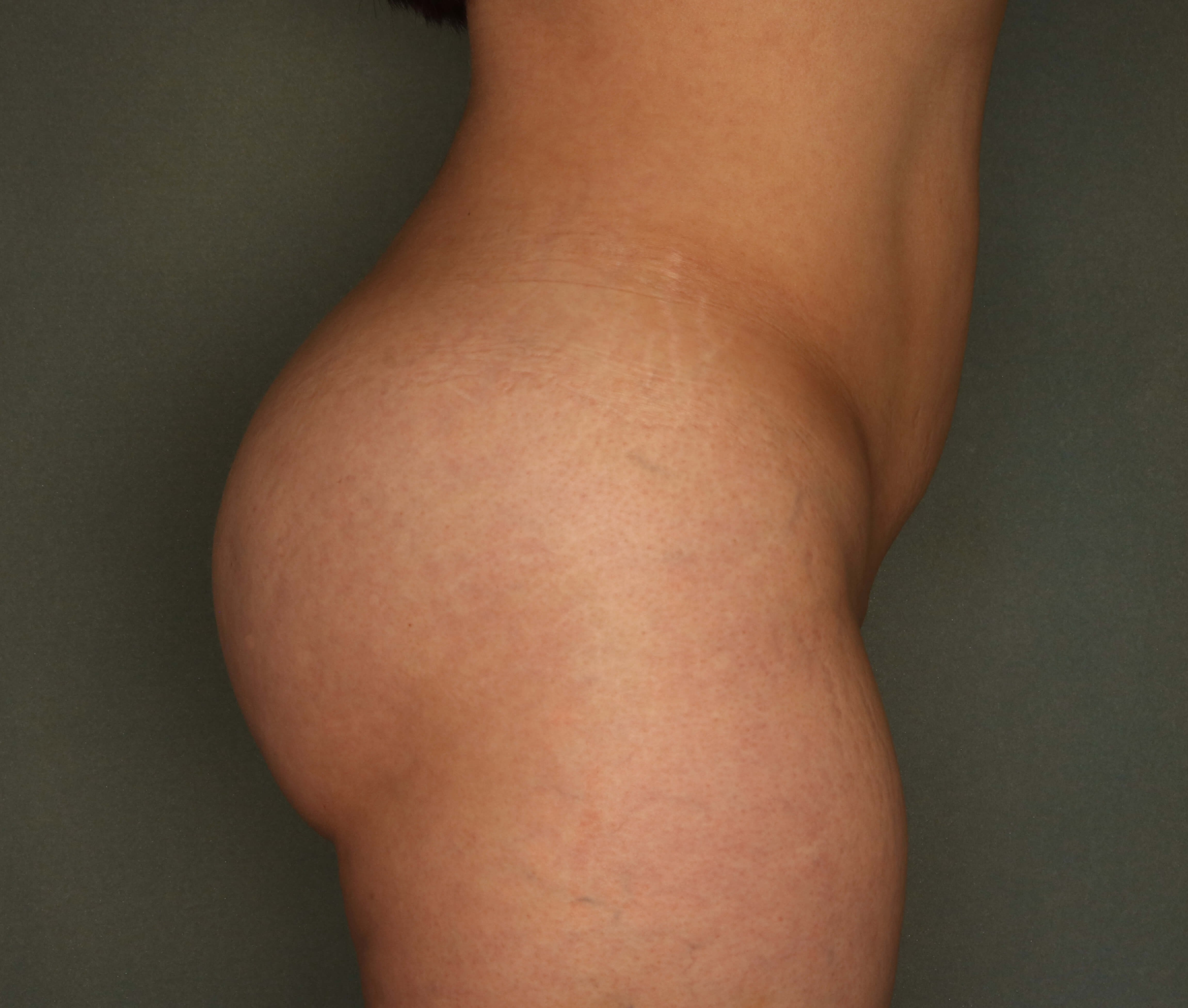 Side Fat transfer to Buttock After