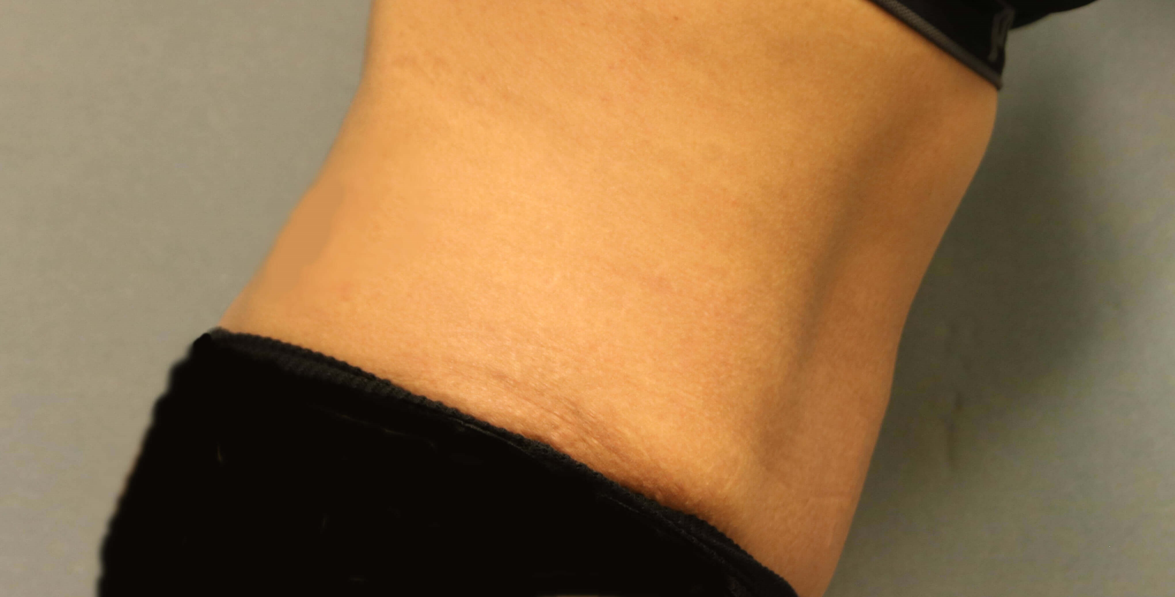 Side Tummy Tuck After