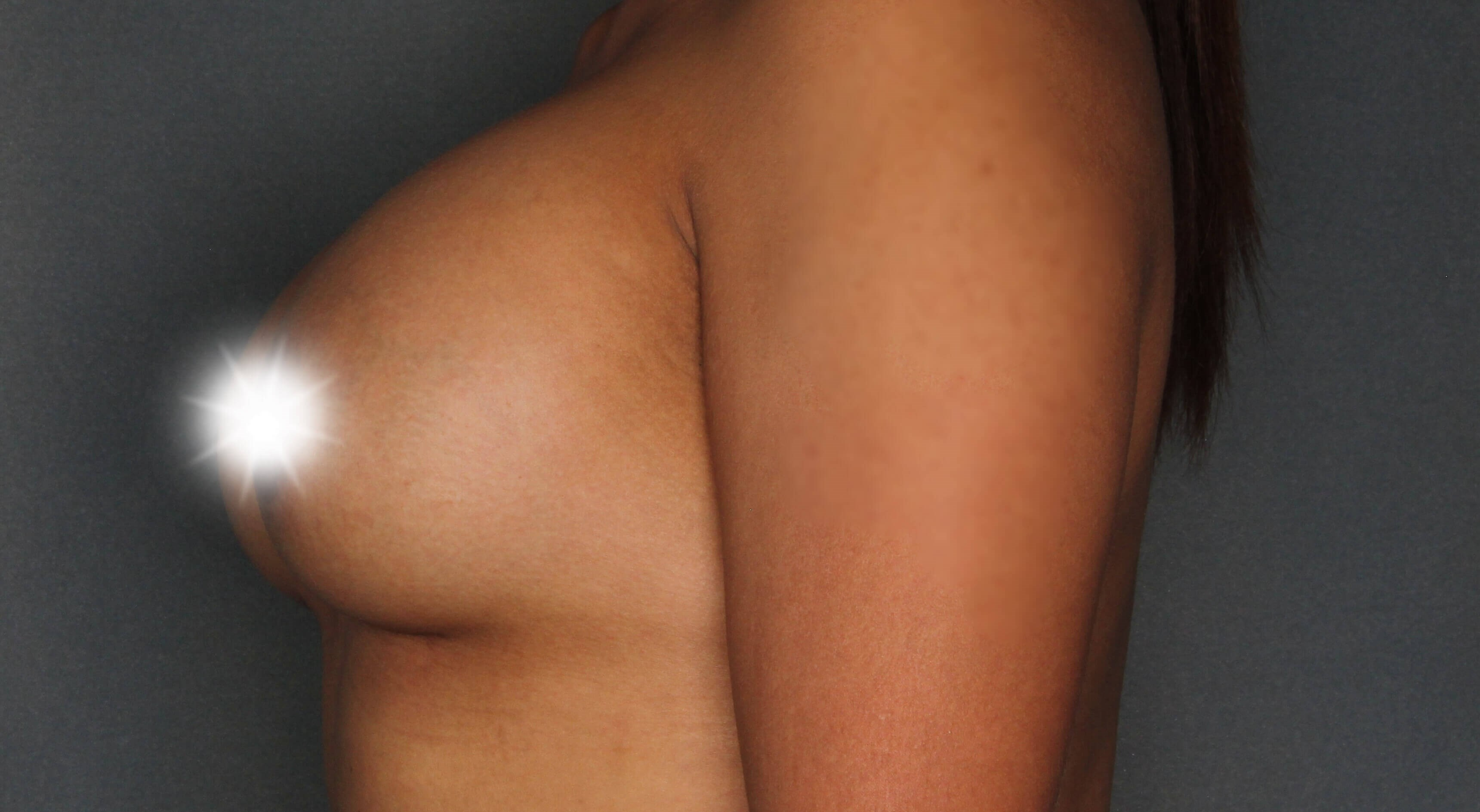 Side Breast Augmentation After