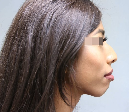 Rhinoplasty/ Filler Before