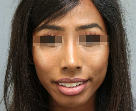 Rhinoplasty 4 months post-op After