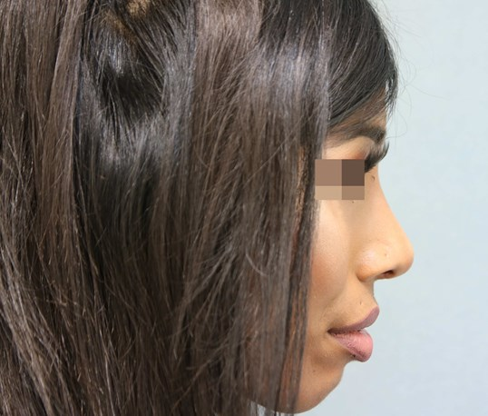 Rhinoplasty/ Filler After