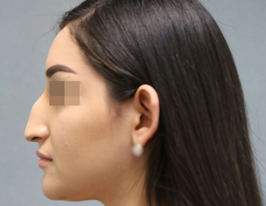 Rhinoplasty 2 months post-op Before