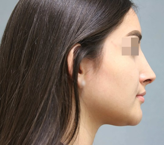 Rhinoplasty 2 months post-op After
