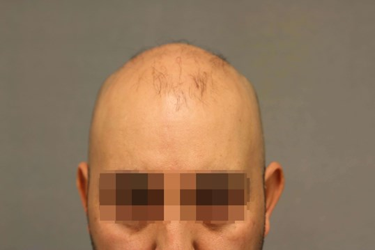 Neograft Hair Transplant Before