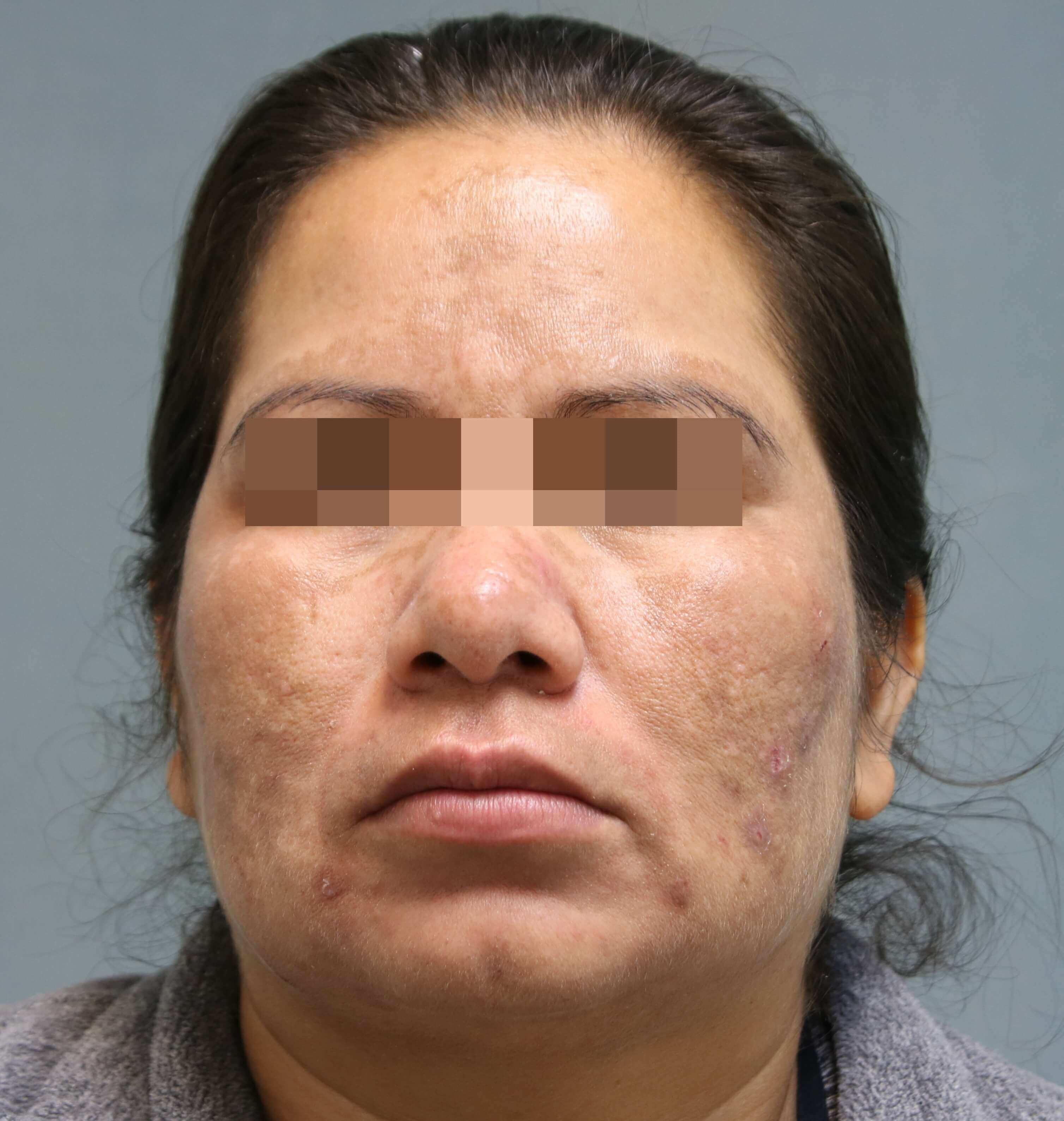 Female Skin Pigmentation After
