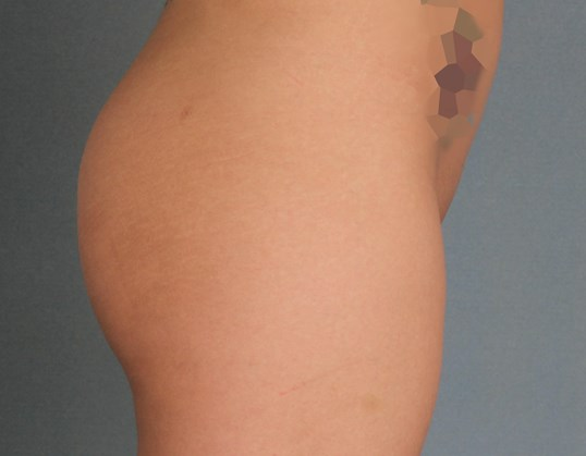 Brazilian Buttock Augmentation Before