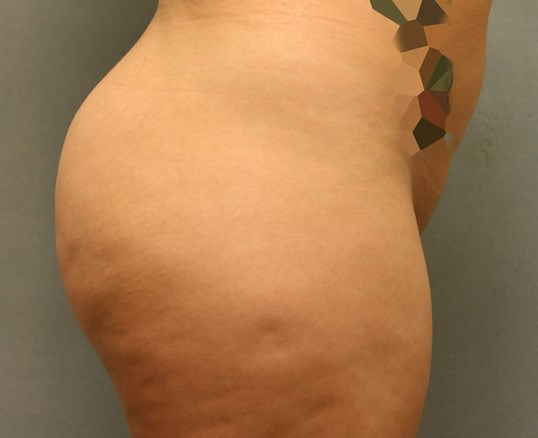 Brazilian Buttock Augmentation After