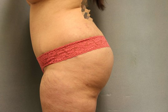 Abdominoplasty/Fat injections After