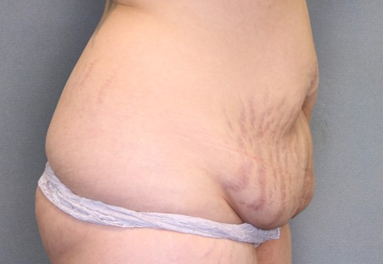 Abdominoplasty/Fat injections Before